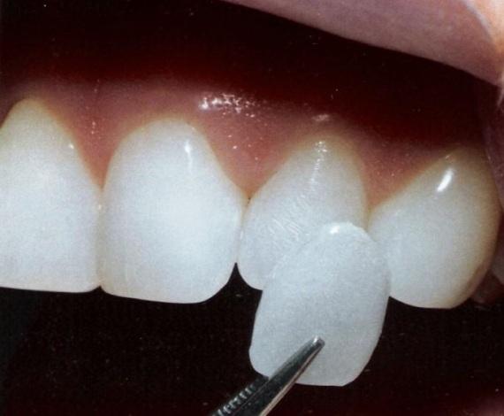 492614-A-lente-de-contato-é-uma-película-de-porcelana-aplicada-sobre-o-dente.